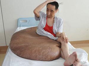 Dünyanın en büyük tümörü onda!