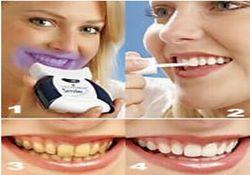 Dişler neden çürür, önlemi ne?