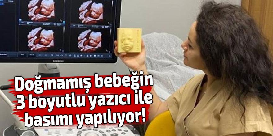 Doğmamış bebeğin 3 boyutlu yazıcı ile basımı yapılıyor!